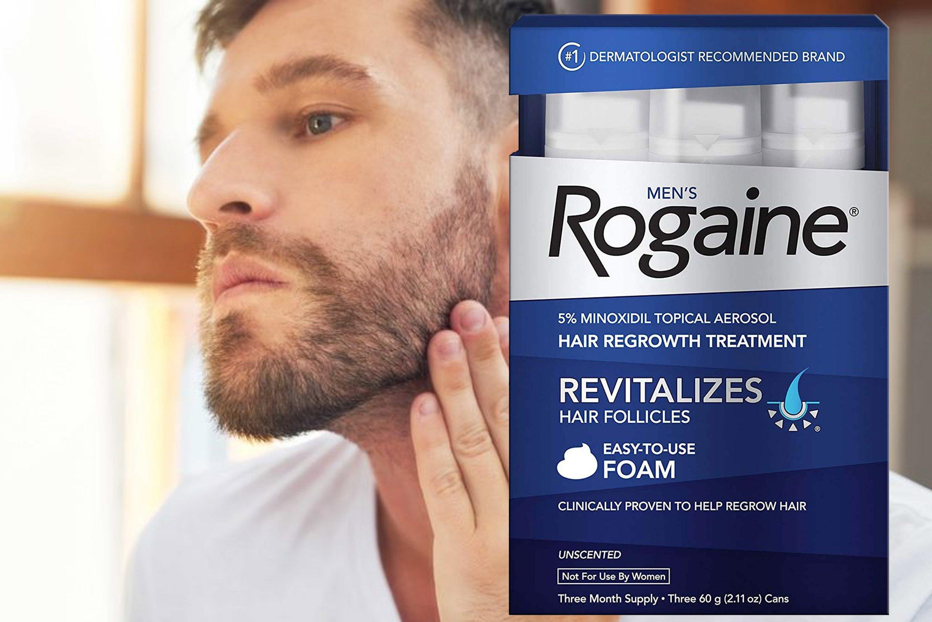 Minoxidil and beard – alliance4hair com