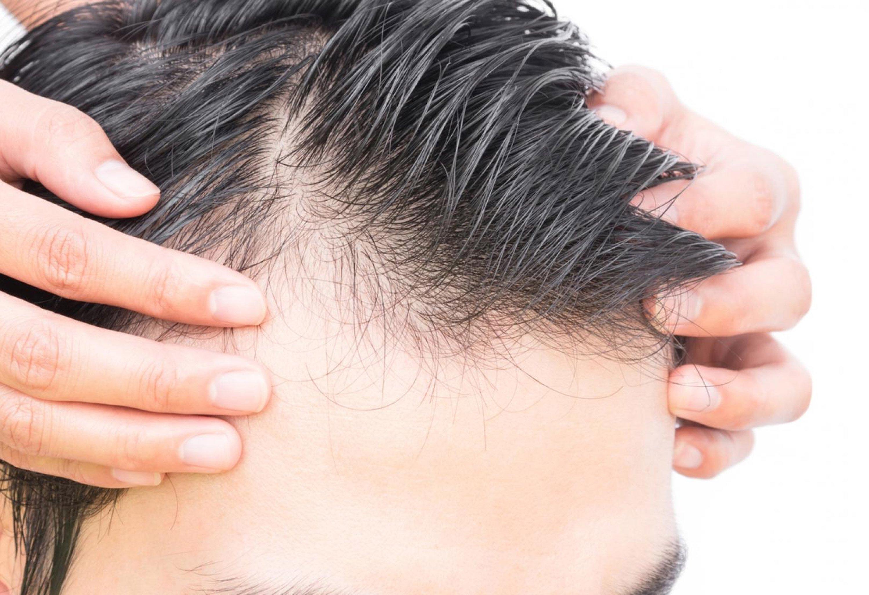 male+pattern+baldness