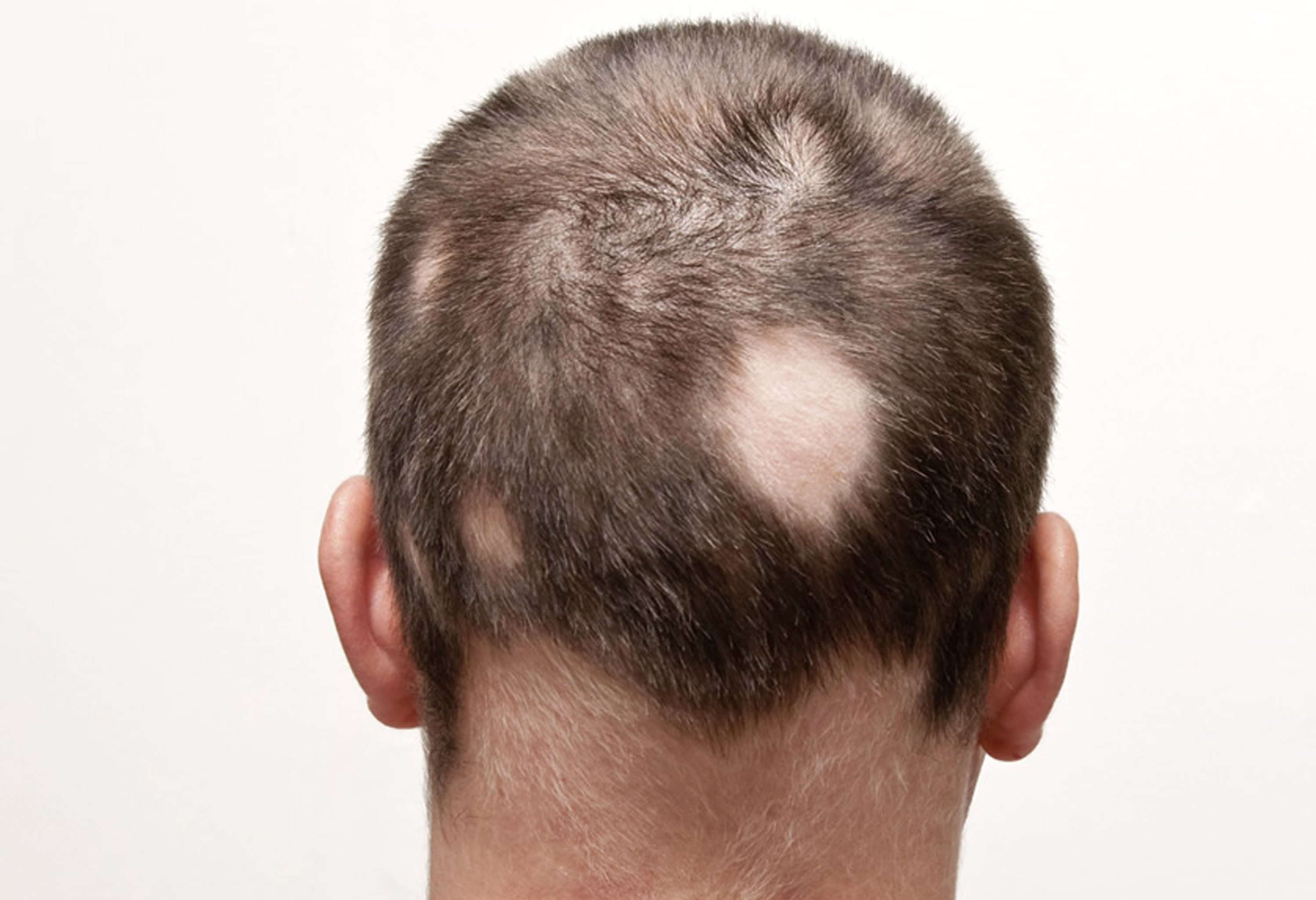 Treatment For Alopecia