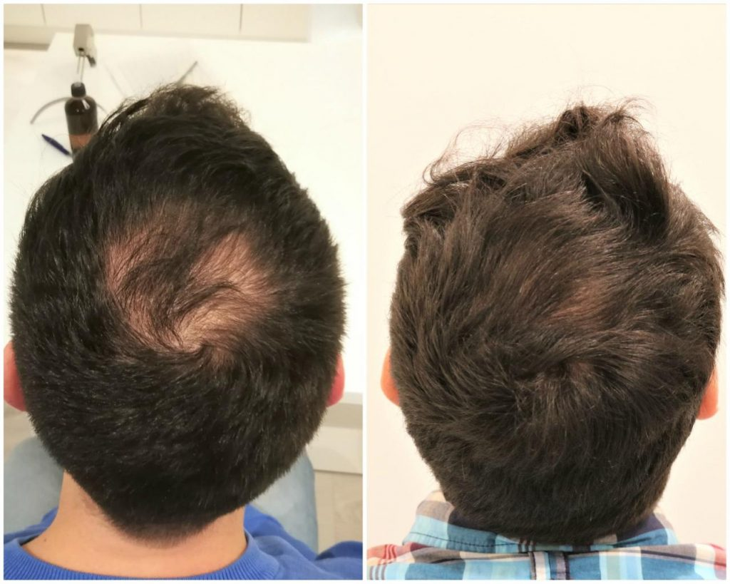 Before and after Finasterid