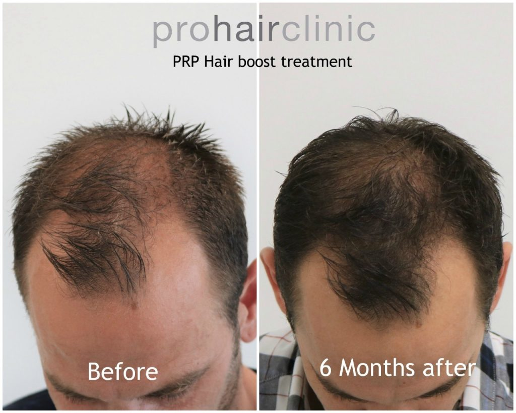 PRP boost treatment