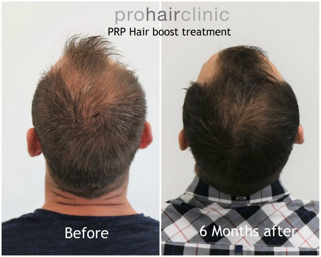 PRP hair boost treatment