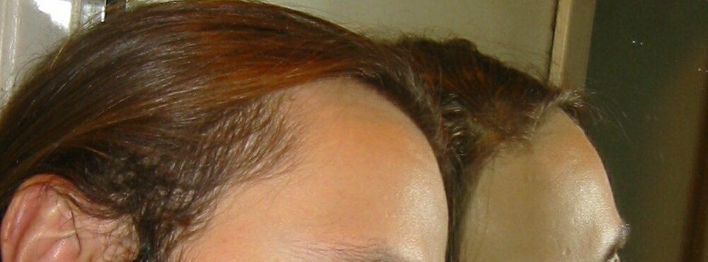 alopezie.de